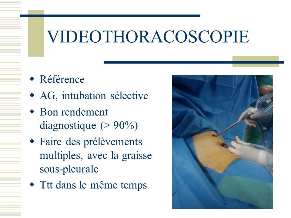 VIDEOTHORACOSCOPIE Référence AG, intubation sélective Bon rendement diagnostique (> 90%) Faire des prélèvements multiples, avec la graisse sous-pleura