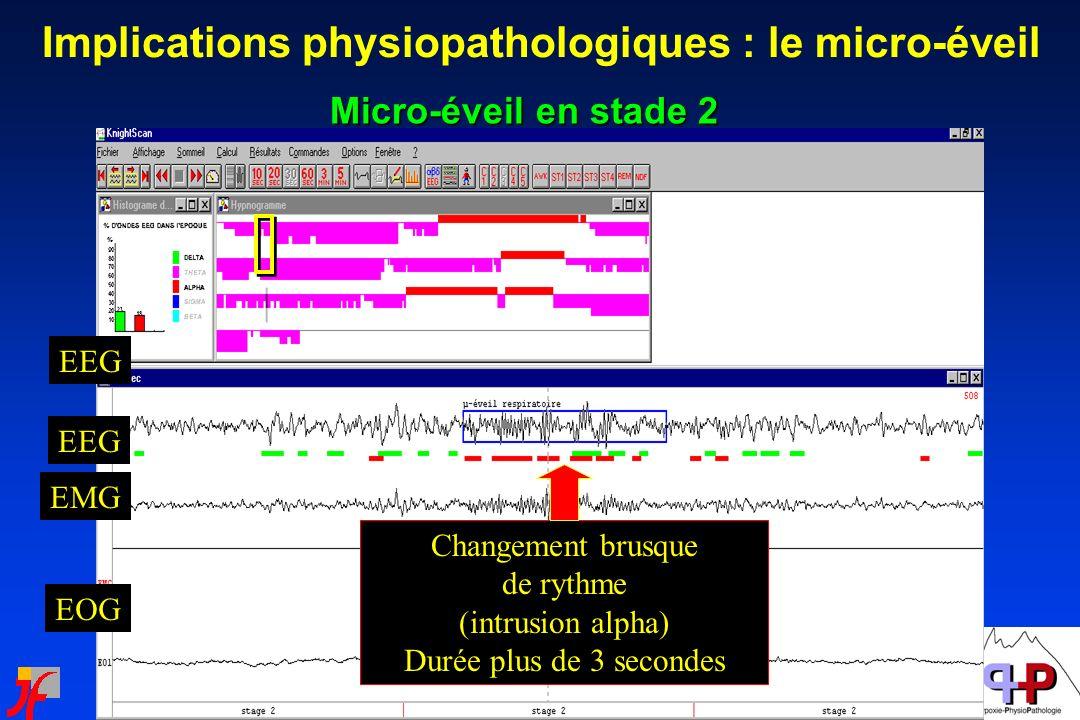 Micro-éveil en stade 2 EEG EMG EOG Changement brusque de rythme (intrusion alpha) Durée plus de 3 secondes Implications physiopathologiques : le micro