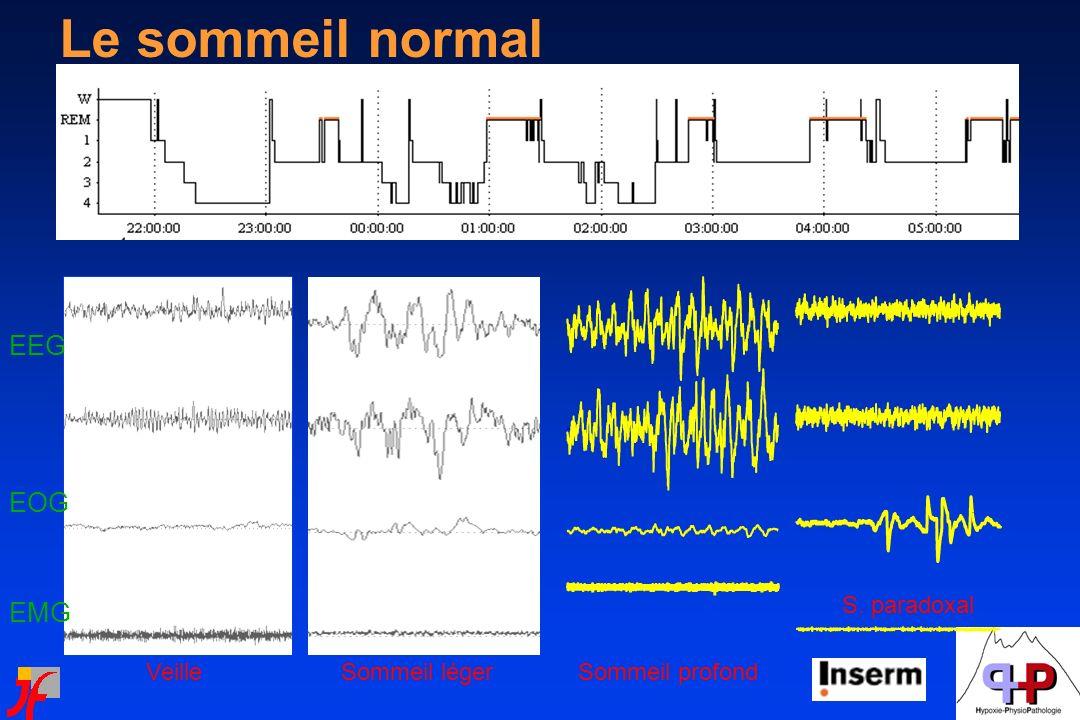 Irwin et al, J Clin Endocrinol Metab 1999;84:1979–1985 Privation de sommeil et activité adrénergique