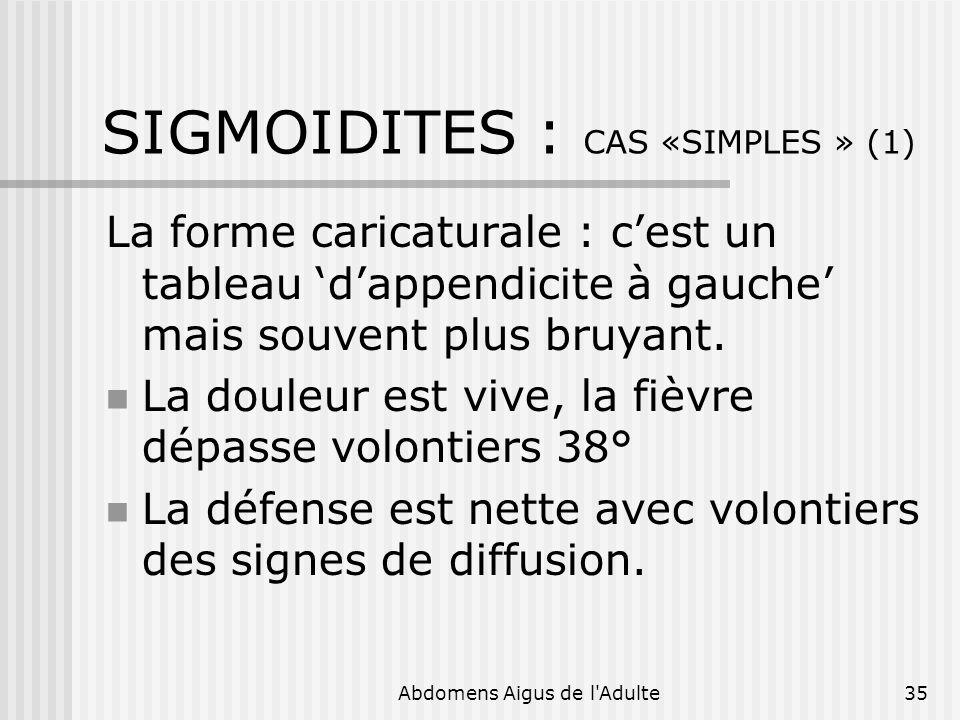 Abdomens Aigus de l'Adulte35 SIGMOIDITES : CAS «SIMPLES » (1) La forme caricaturale : cest un tableau dappendicite à gauche mais souvent plus bruyant.