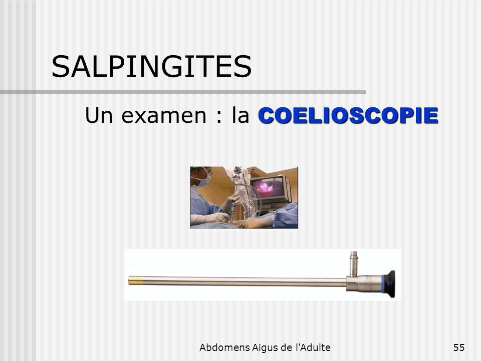 Abdomens Aigus de l'Adulte55 SALPINGITES COELIOSCOPIE Un examen : la COELIOSCOPIE