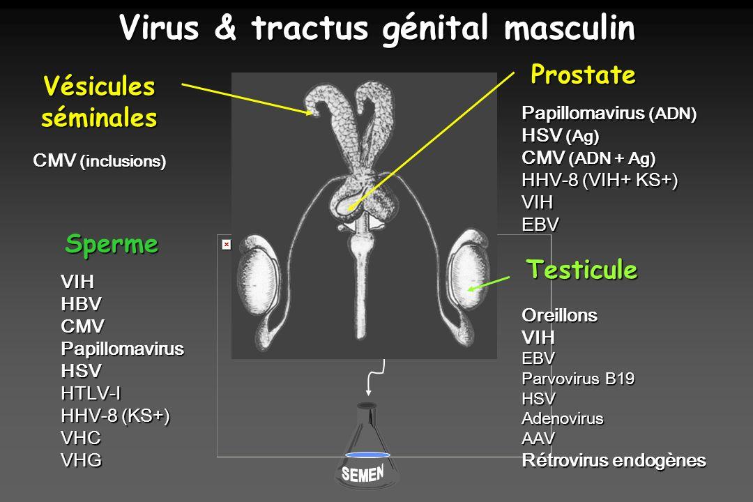 Virus & tractus génital masculin VIHHBV CMV PapillomavirusHSVHTLV-I HHV-8 (KS+) VHCVHG Sperme Papillomavirus (ADN) HSV (Ag) CMV (ADN + Ag) HHV-8 (VIH+