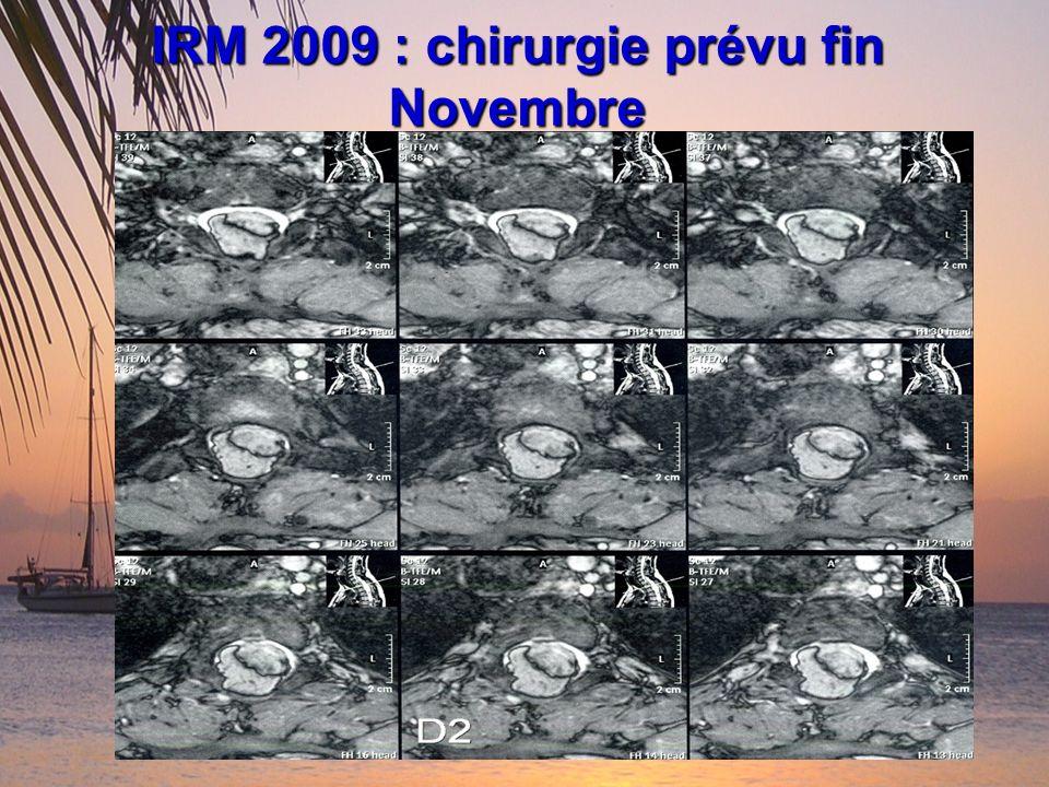 IRM 2009 : chirurgie prévu fin Novembre