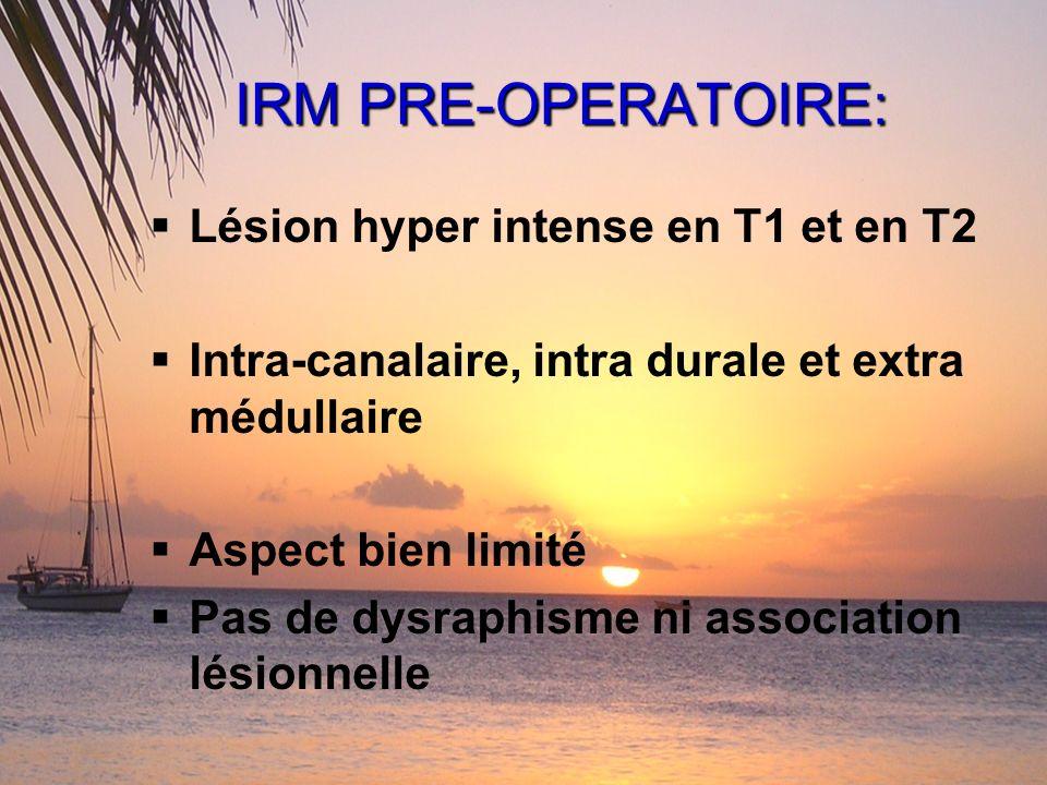 IRM PRE-OPERATOIRE: Lésion hyper intense en T1 et en T2 Intra-canalaire, intra durale et extra médullaire Aspect bien limité Pas de dysraphisme ni ass