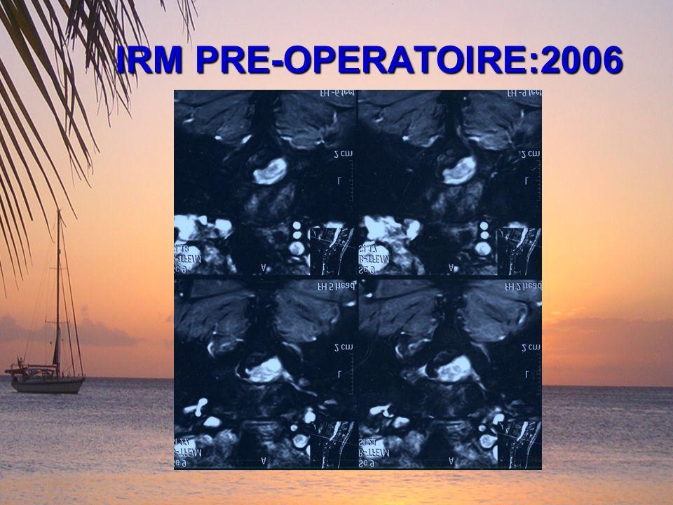 IRM PRE-OPERATOIRE:2006