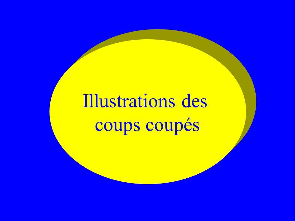 Illustrations des coups coupés
