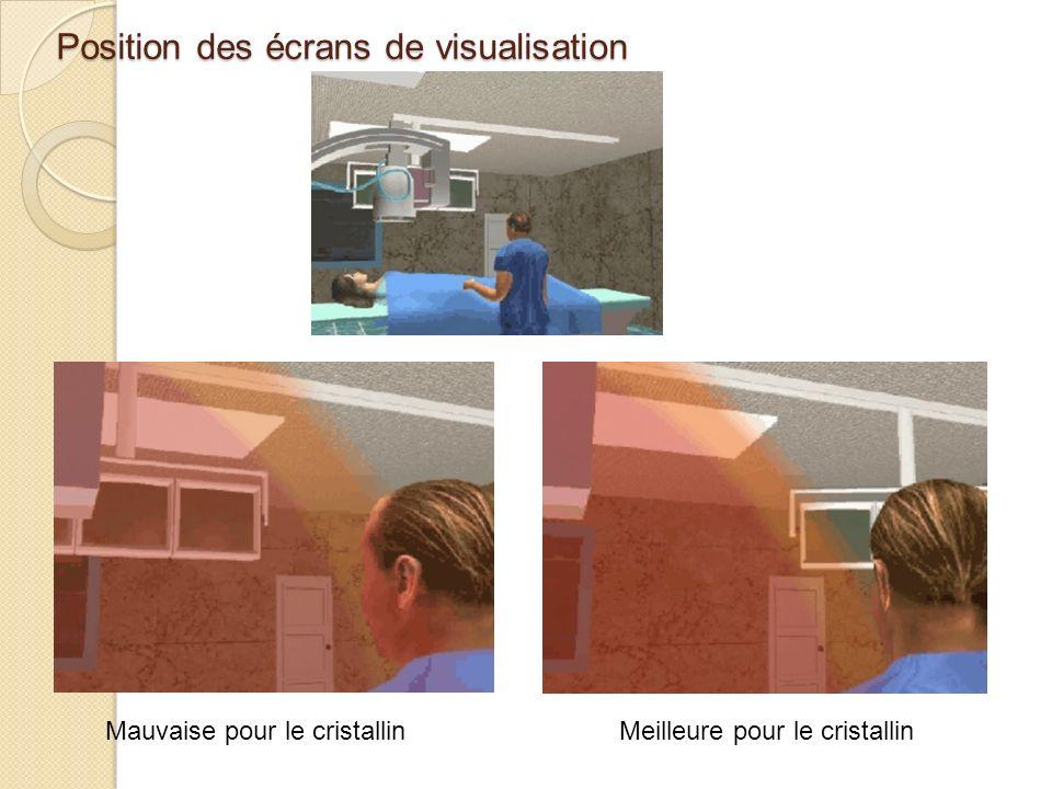 Position des écrans de visualisation Meilleure pour le cristallinMauvaise pour le cristallin