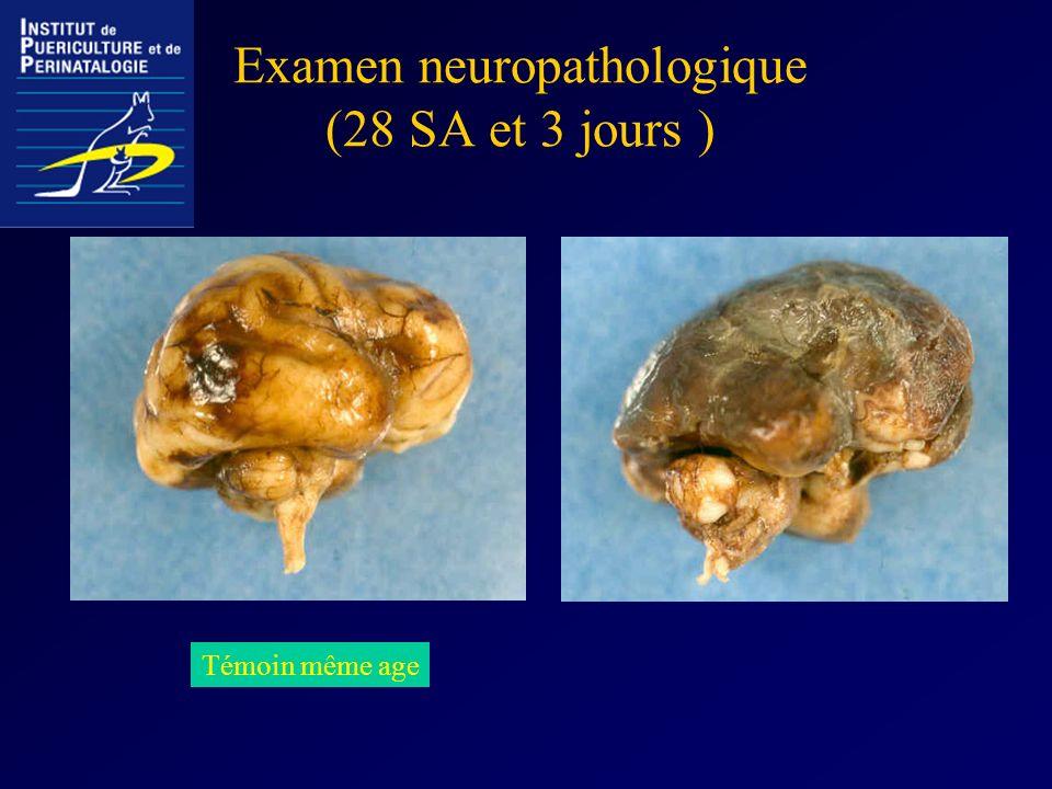 Examen neuropathologique (28 SA et 3 jours ) Témoin même age