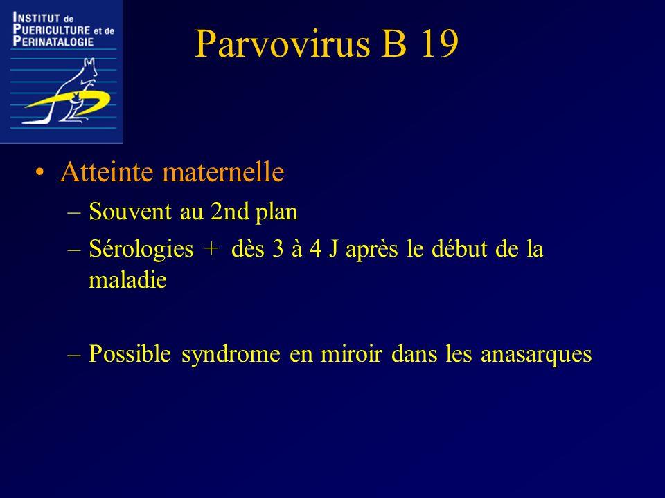 Parvovirus B 19 Atteinte maternelle –Souvent au 2nd plan –Sérologies + dès 3 à 4 J après le début de la maladie –Possible syndrome en miroir dans les