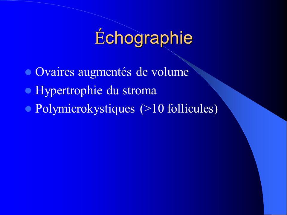 É chographie Ovaires augmentés de volume Hypertrophie du stroma Polymicrokystiques (>10 follicules)