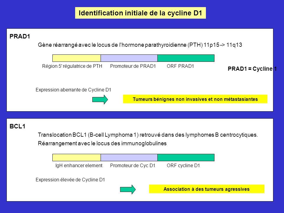 Identification initiale de la cycline D1 PRAD1 Gène réarrangé avec le locus de l hormone parathyroidienne (PTH) 11p15 -> 11q13 Région 5 régulatrice de PTHPromoteur de PRAD1ORF PRAD1 PRAD1 = Cycline 1 Expression aberrante de Cycline D1 Tumeurs bénignes non invasives et non métastasiantes BCL1 Translocation BCL1 (B-cell Lymphoma 1) retrouvé dans des lymphomes B centrocytiques.