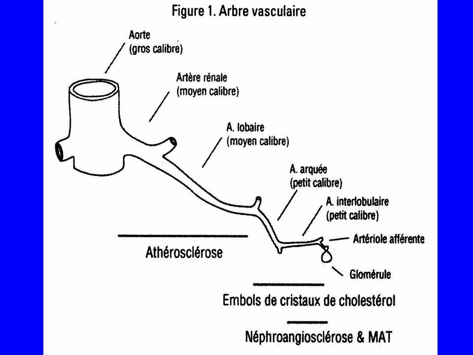B.Néphropathies vasculaires aigues 1.