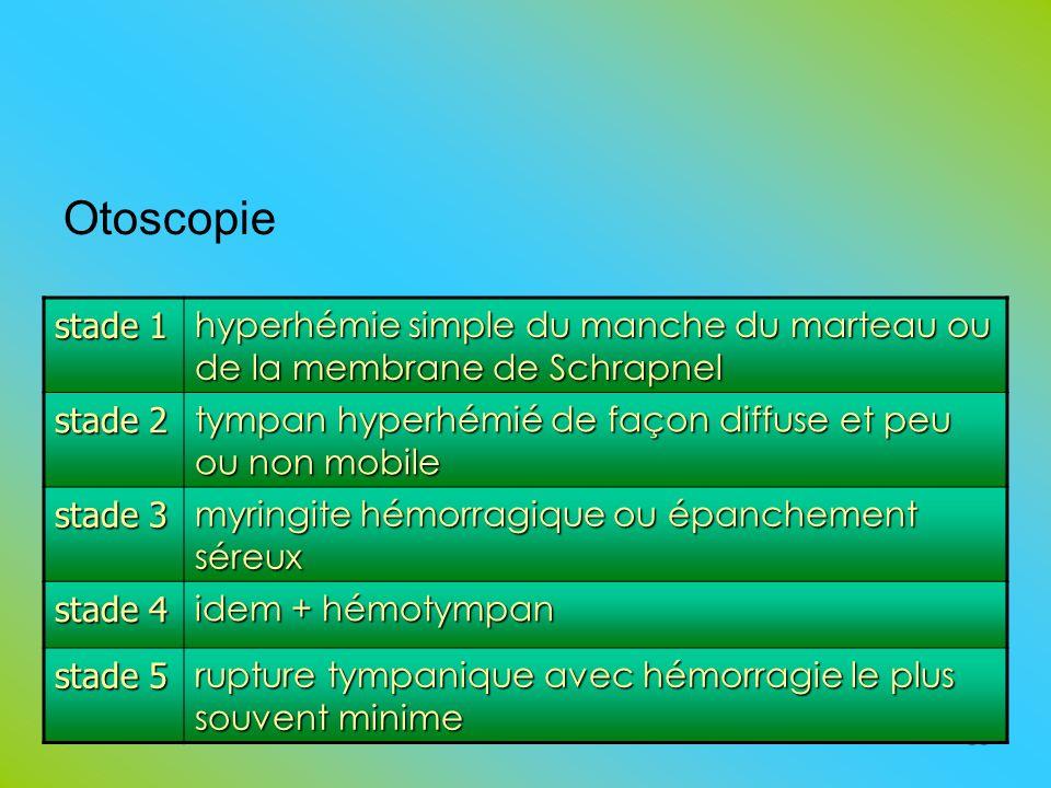 Otoscopie 38 stade 1 hyperhémie simple du manche du marteau ou de la membrane de Schrapnel stade 2 tympan hyperhémié de façon diffuse et peu ou non mo