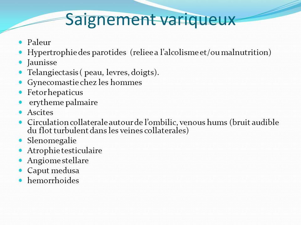 Saignement variqueux Paleur Hypertrophie des parotides (reliee a lalcolisme et/ou malnutrition) Jaunisse Telangiectasis ( peau, levres, doigts). Gynec