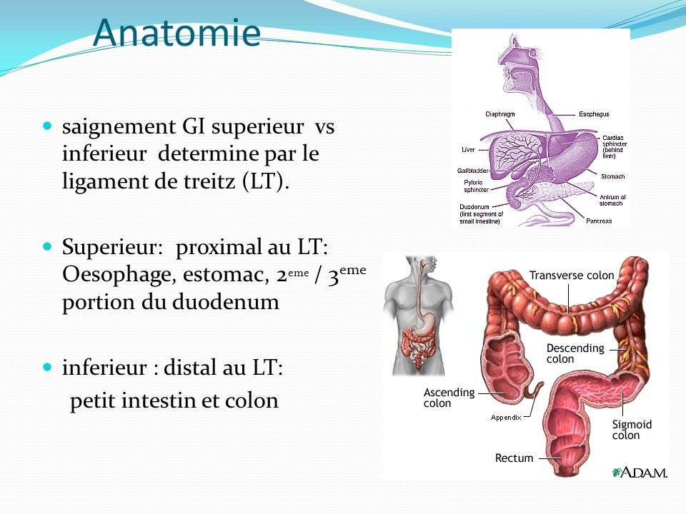 Anatomie saignement GI superieur vs inferieur determine par le ligament de treitz (LT). Superieur: proximal au LT: Oesophage, estomac, 2 eme / 3 eme p