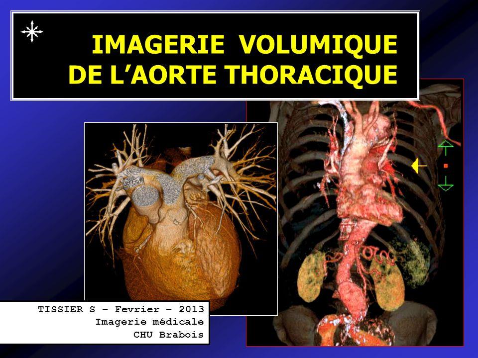 IMAGERIE VOLUMIQUE DE LAORTE THORACIQUE TISSIER S – Fevrier – 2013 Imagerie médicale CHU Brabois