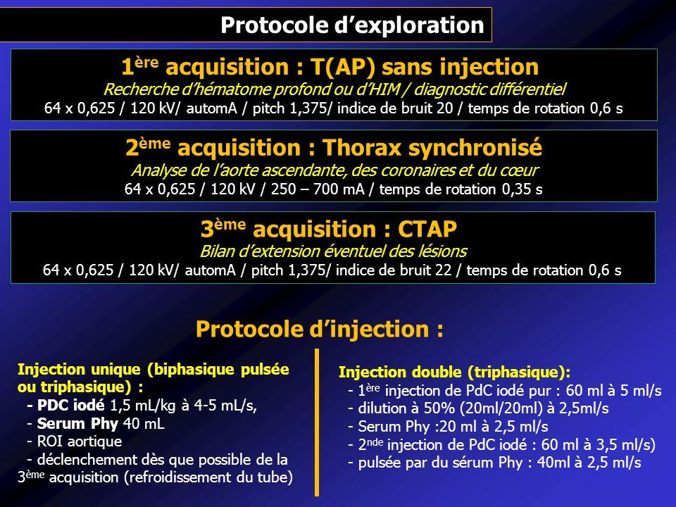 1 ère acquisition : T(AP) sans injection Recherche dhématome profond ou dHIM / diagnostic différentiel 64 x 0,625 / 120 kV/ automA / pitch 1,375/ indi