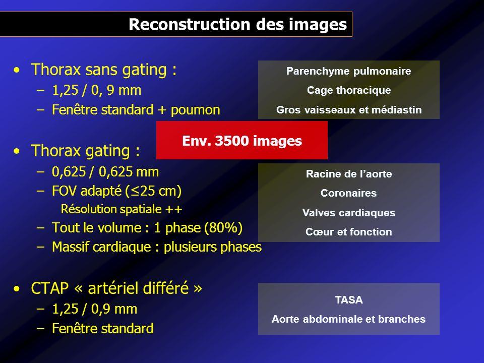 Thorax sans gating : –1,25 / 0, 9 mm –Fenêtre standard + poumon Thorax gating : –0,625 / 0,625 mm –FOV adapté (25 cm) Résolution spatiale ++ –Tout le