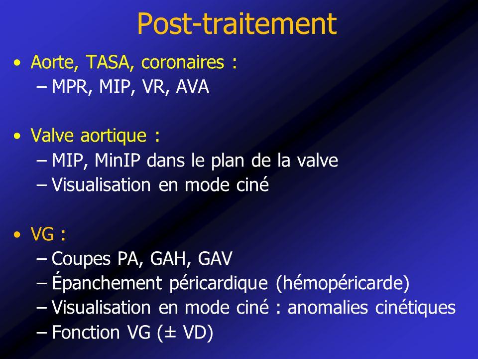 Post-traitement Aorte, TASA, coronaires : –MPR, MIP, VR, AVA Valve aortique : –MIP, MinIP dans le plan de la valve –Visualisation en mode ciné VG : –C