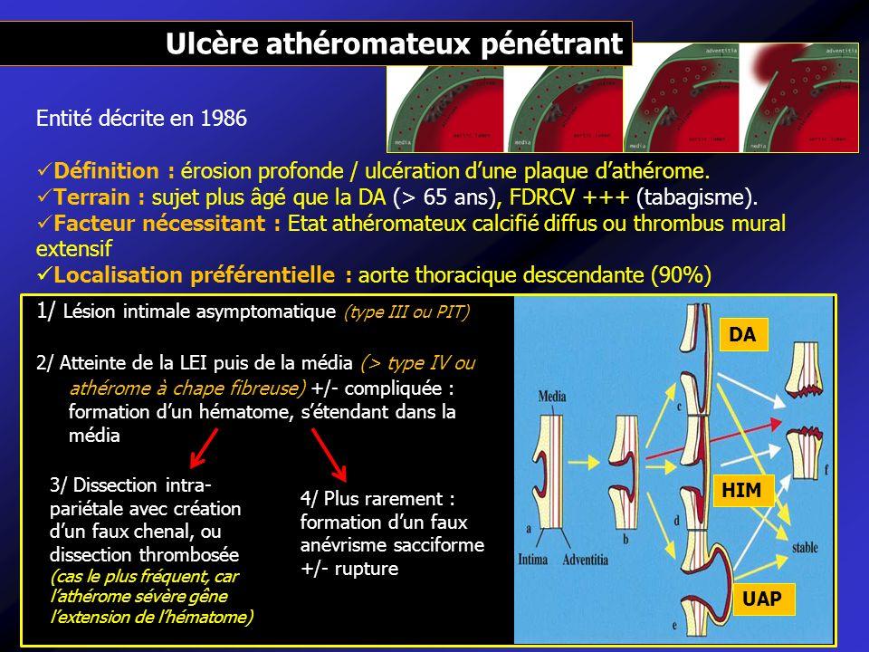 Entité décrite en 1986 Définition : érosion profonde / ulcération dune plaque dathérome. Terrain : sujet plus âgé que la DA (> 65 ans), FDRCV +++ (tab