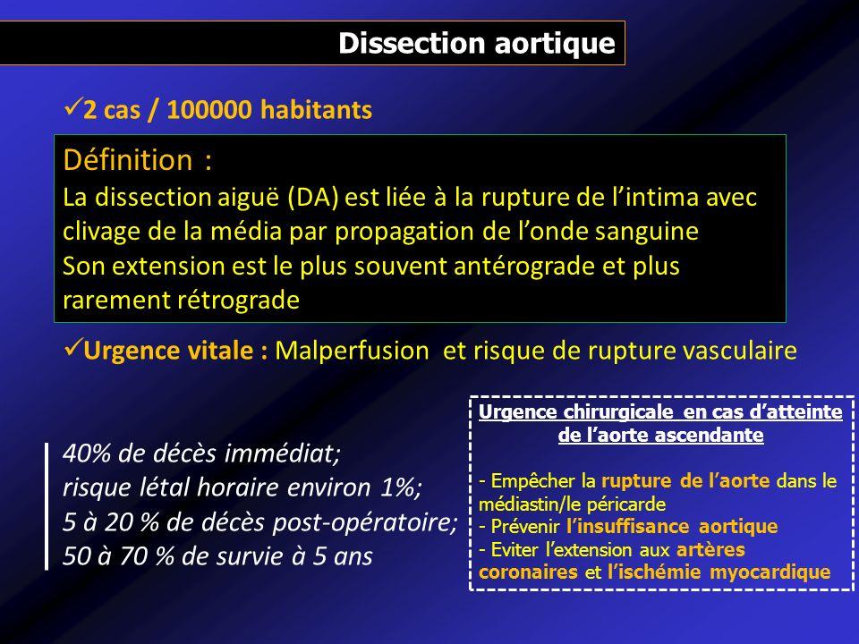 Dissection aortique 2 cas / 100000 habitants Urgence vitale : Malperfusion et risque de rupture vasculaire 40% de décès immédiat; risque létal horaire