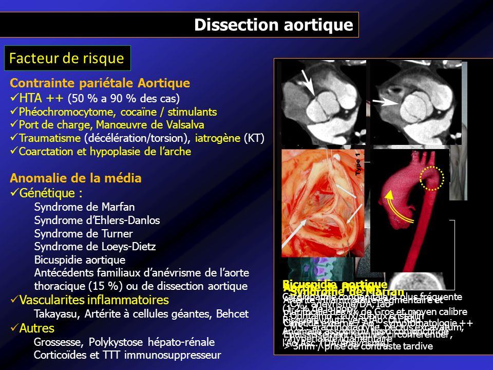 Contrainte pariétale Aortique HTA ++ (50 % a 90 % des cas) Phéochromocytome, cocaïne / stimulants Port de charge, Manœuvre de Valsalva Traumatisme (dé