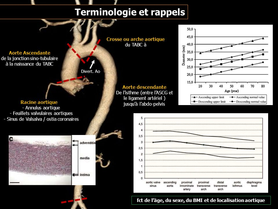Athérome : 40% ++ aorte descendante Anévrismes fusiformes surtout Infections (bactéries, syphilis) Anévrismes sacciformes ++ dits « mycotiques » Inflammations (Takayasu…) Post traumatique (sur isthme), péri prothétique (+++) Dystrophie tissu élastique (Marfan, Ehlers-Danlos…) Surtout pour le segment ascendant ++ Anévrysmes sacciformes plus fréquents Pathologies anévrismales aortiques