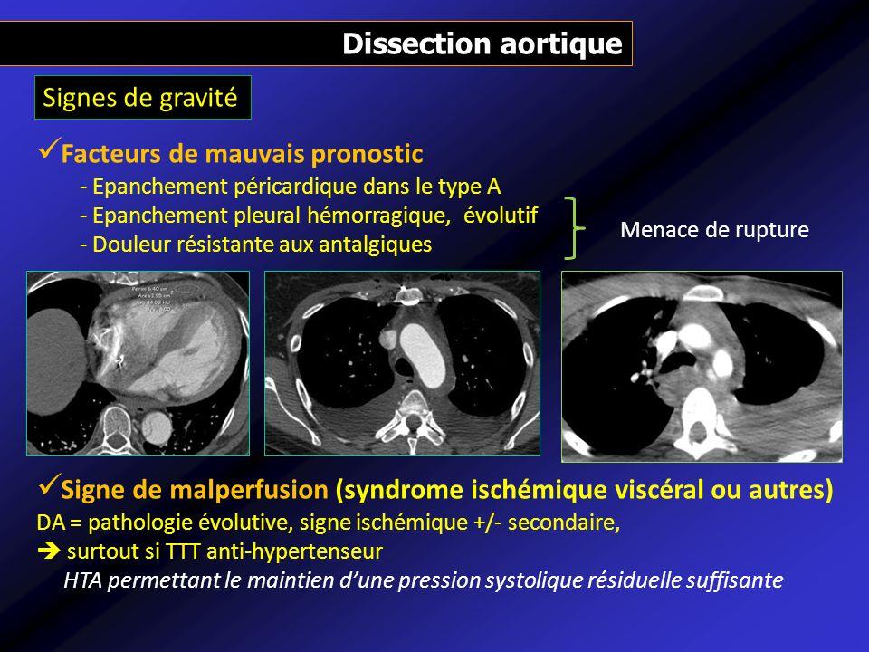 Dissection aortique Facteurs de mauvais pronostic - Epanchement péricardique dans le type A - Epanchement pleural hémorragique, évolutif - Douleur rés
