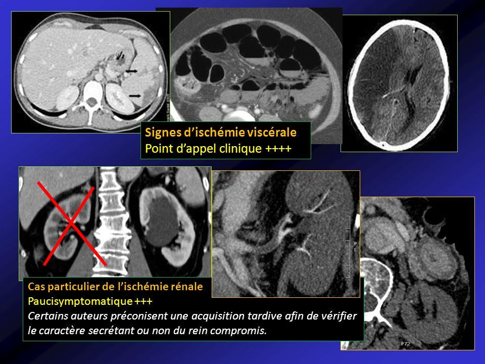 Signes dischémie viscérale Point dappel clinique ++++ Cas particulier de lischémie rénale Paucisymptomatique +++ Certains auteurs préconisent une acqu