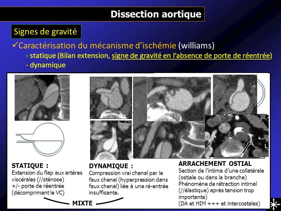 Signes de gravité Dissection aortique Caractérisation du mécanisme dischémie (williams) - statique (Bilan extension, signe de gravité en labsence de p