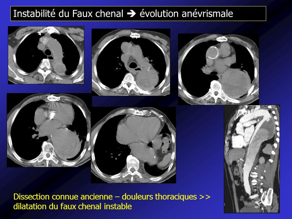 Instabilité du Faux chenal évolution anévrismale Dissection connue ancienne – douleurs thoraciques >> dilatation du faux chenal instable