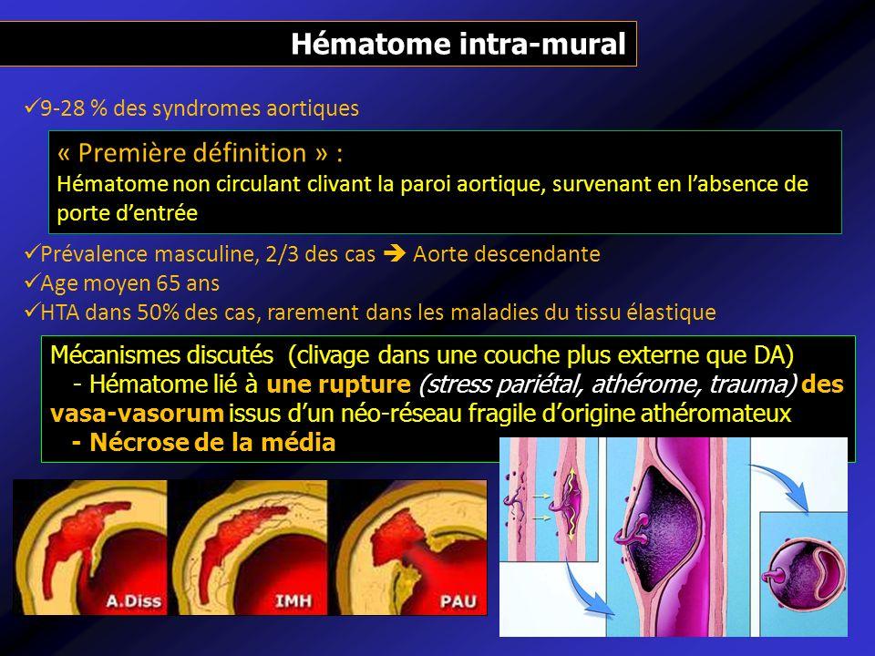 Hématome intra-mural 9-28 % des syndromes aortiques Prévalence masculine, 2/3 des cas Aorte descendante Age moyen 65 ans HTA dans 50% des cas, raremen