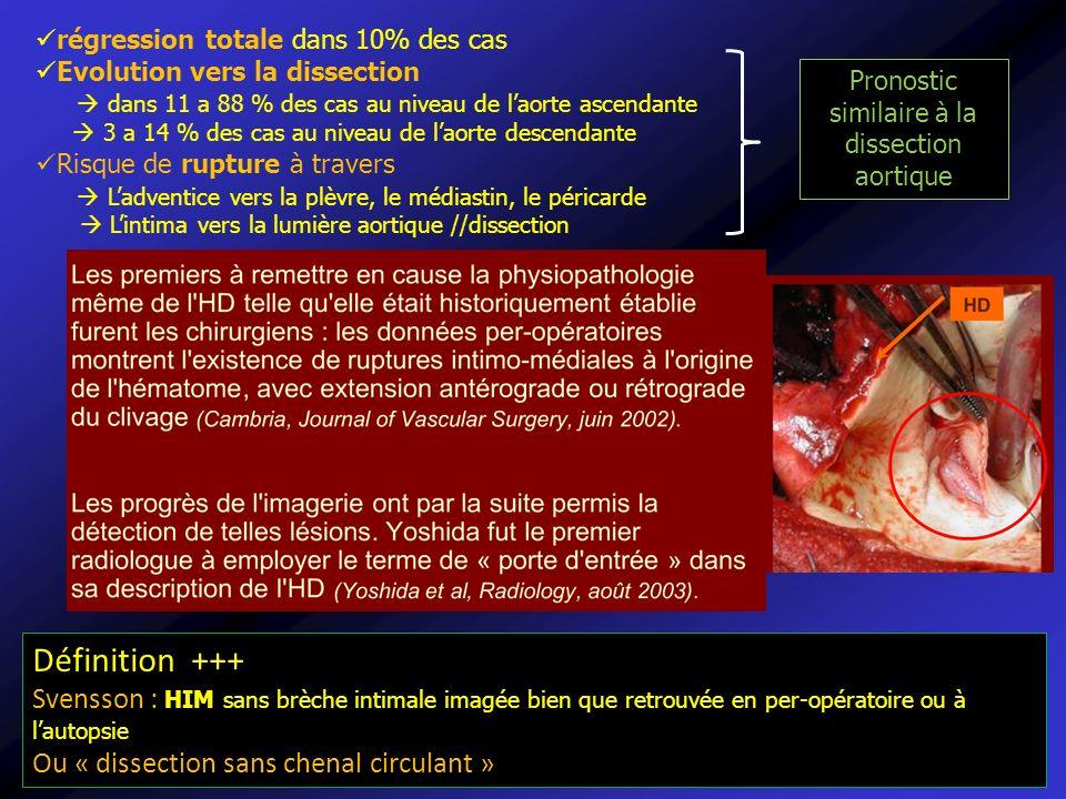 régression totale dans 10% des cas Evolution vers la dissection dans 11 a 88 % des cas au niveau de laorte ascendante 3 a 14 % des cas au niveau de la