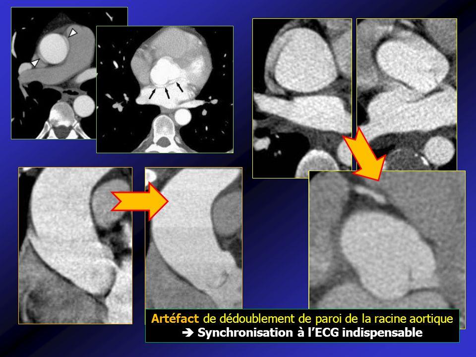 Image piège de pseudo-dissection Athérome simple Valves sigmoïdes Artéfacts cinétiques cardiaques Solution : synchronisation ECG