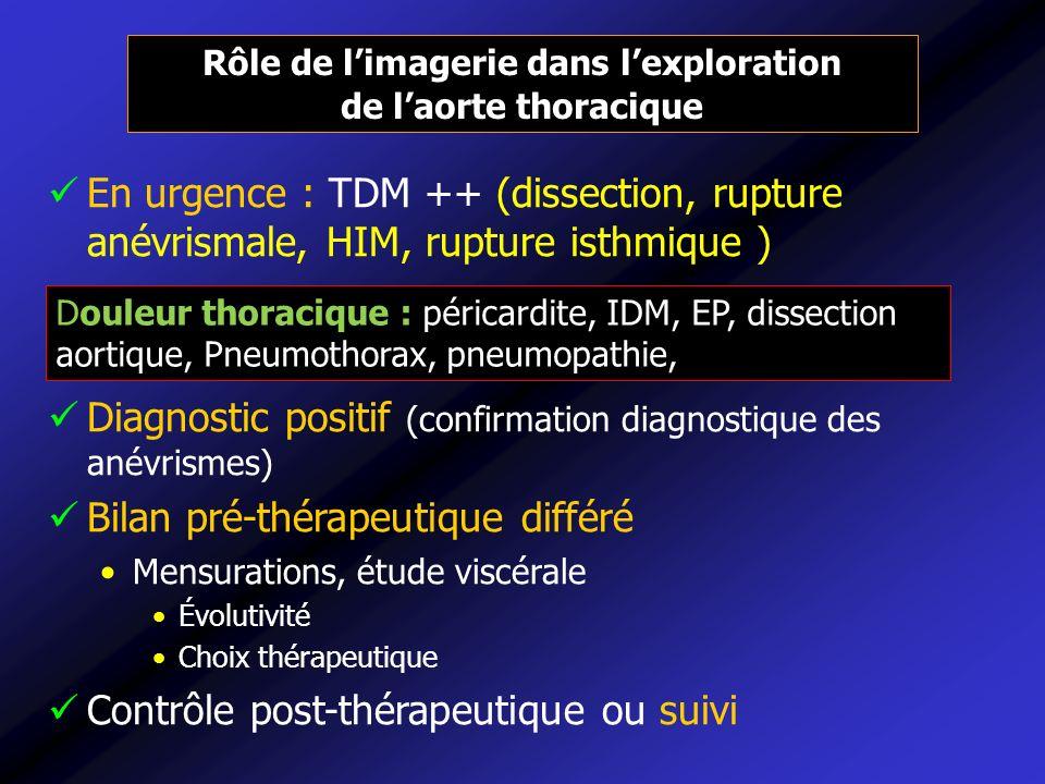 En urgence : TDM ++ (dissection, rupture anévrismale, HIM, rupture isthmique ) Diagnostic positif (confirmation diagnostique des anévrismes) Bilan pré