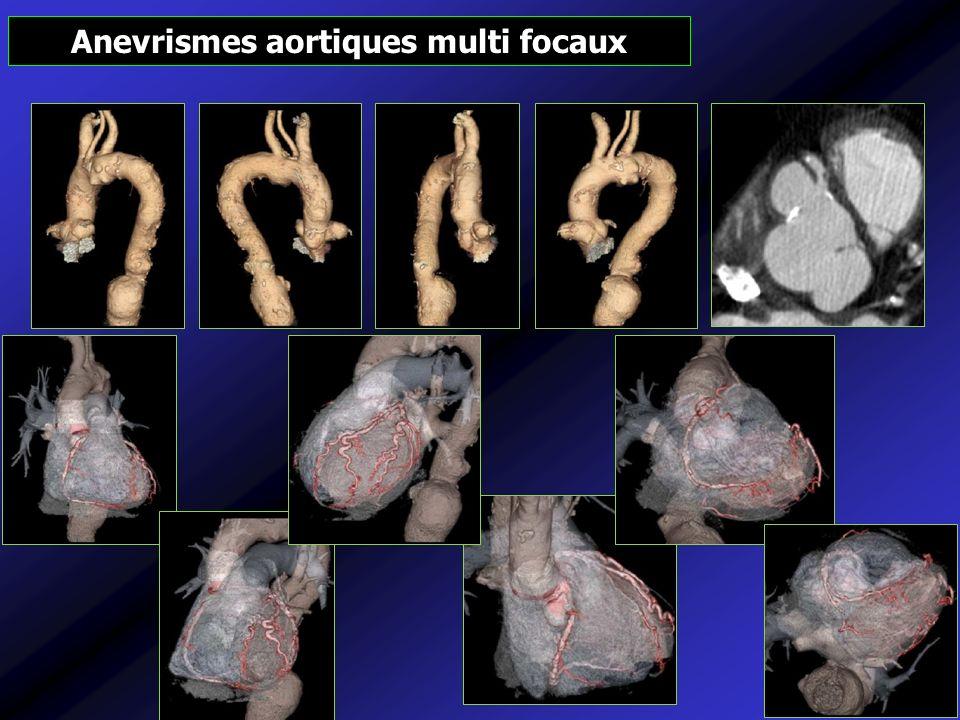 Anevrismes aortiques multi focaux