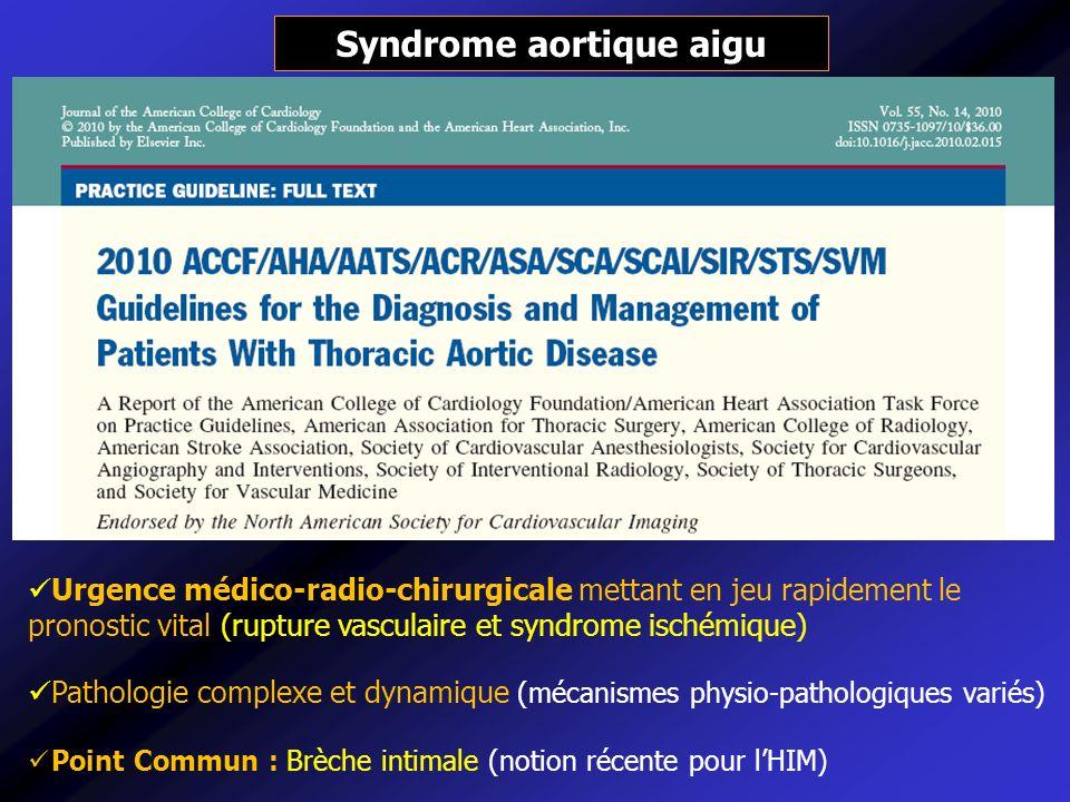 Prise en charge des syndromes aortiques aigus TTT médical TTT chirurgical Surveillance en réanimation / USI contrôle de lHTA TTT anti-coagulant en cas de malperfusion 1/ Atteinte de lAo Ascendante : chirurgie en urgence (remplacement Aorte +/- valve aortique) +/- endovasculaire 2/ Atteinte de laorte descendante compliquée (rupture/ischémie) : TTT chir pontage / fenestration chirurgicale TTT endovasculaire - Endoprothèse pour exclure la porte dentrée (depressurisation du FC et thrombose), cure en urgence dune rupture - Fenestration endovasculaire dune ischémie statique Dissection aortique aiguë classique