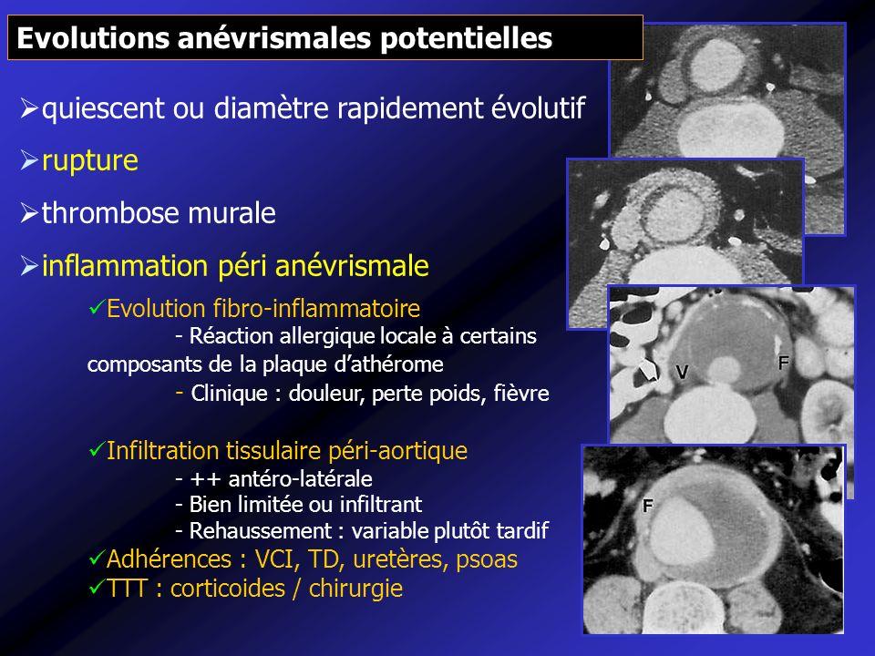 Evolution fibro-inflammatoire - Réaction allergique locale à certains composants de la plaque dathérome - Clinique : douleur, perte poids, fièvre Infi