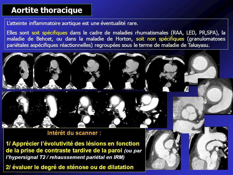 Intérêt du scanner : 1/ Apprécier lévolutivité des lésions en fonction de la prise de contraste tardive de la paroi (ou par lhypersignal T2 / rehausse