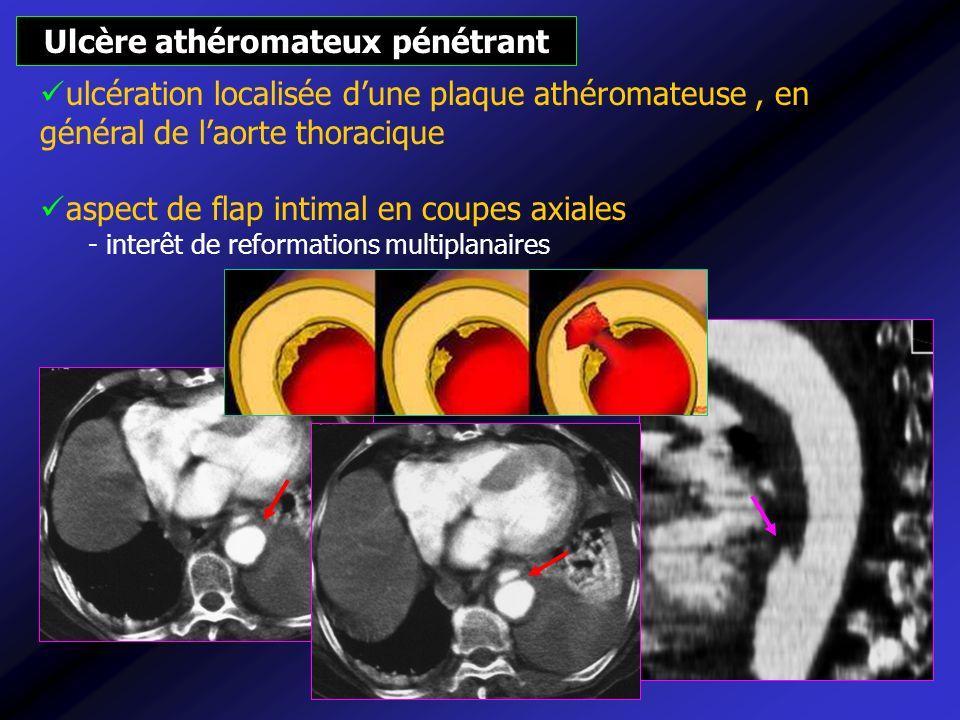 Ulcère athéromateux pénétrant ulcération localisée dune plaque athéromateuse, en général de laorte thoracique aspect de flap intimal en coupes axiales