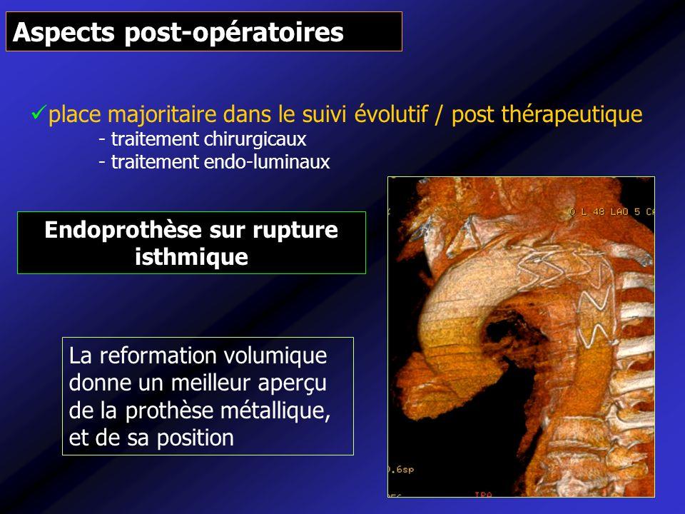 Aspects post-opératoires place majoritaire dans le suivi évolutif / post thérapeutique - traitement chirurgicaux - traitement endo-luminaux La reforma