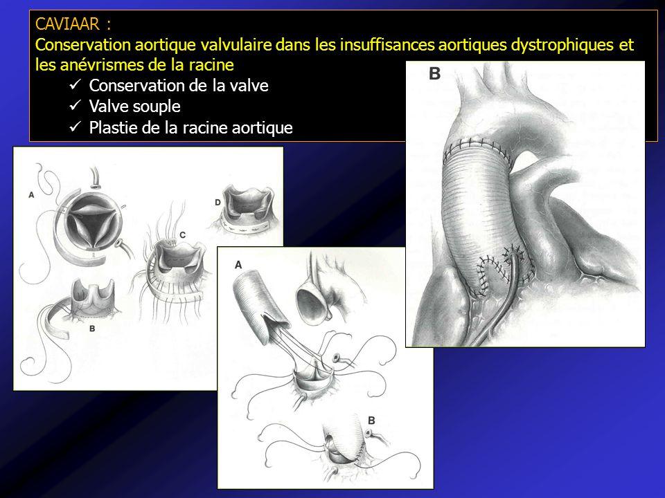 CAVIAAR : Conservation aortique valvulaire dans les insuffisances aortiques dystrophiques et les anévrismes de la racine Conservation de la valve Valv