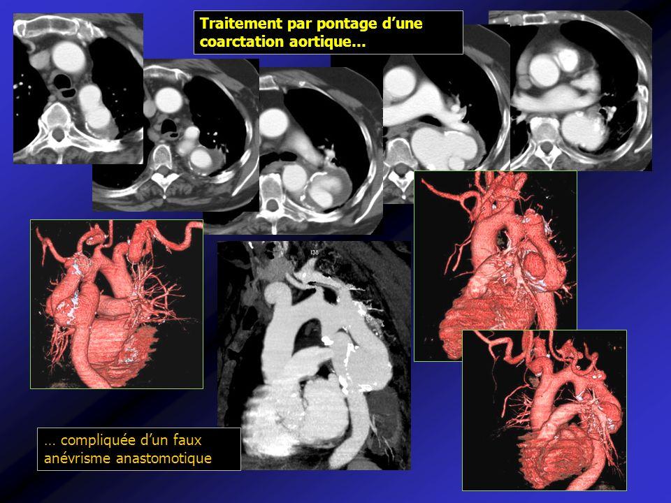 Traitement par pontage dune coarctation aortique… … compliquée dun faux anévrisme anastomotique