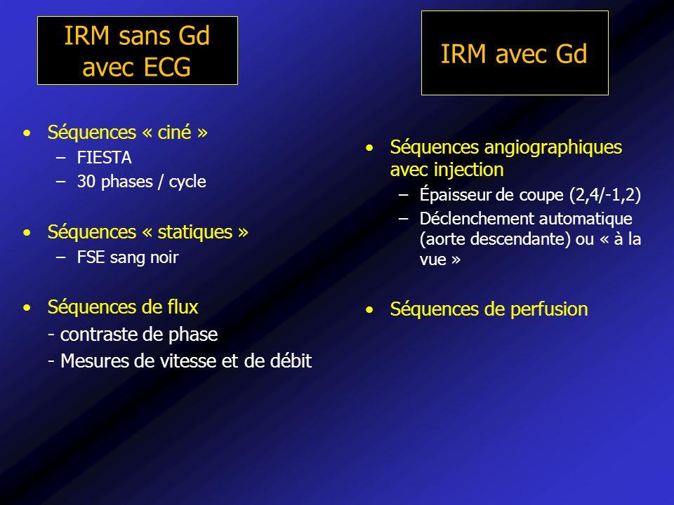 IRM sans Gd avec ECG Séquences « ciné » –FIESTA –30 phases / cycle Séquences « statiques » –FSE sang noir Séquences de flux - contraste de phase - Mes