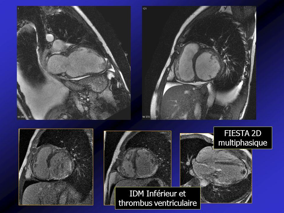 IDM Inférieur et thrombus ventriculaire FIESTA 2D multiphasique