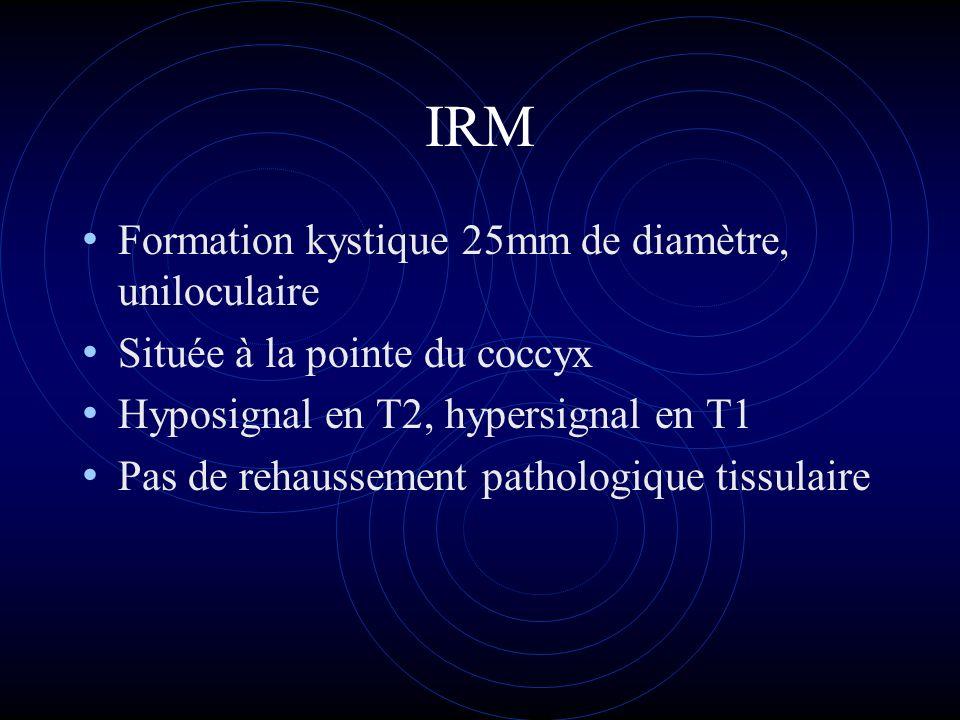 IRM Formation kystique 25mm de diamètre, uniloculaire Située à la pointe du coccyx Hyposignal en T2, hypersignal en T1 Pas de rehaussement pathologiqu