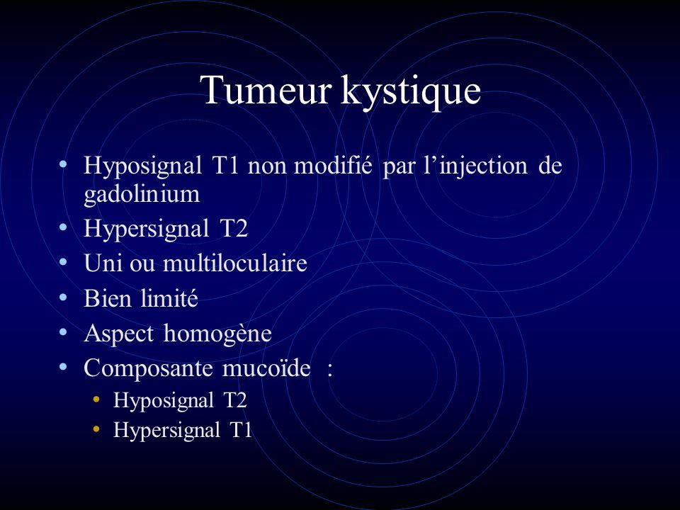 Tumeur kystique Hyposignal T1 non modifié par linjection de gadolinium Hypersignal T2 Uni ou multiloculaire Bien limité Aspect homogène Composante muc