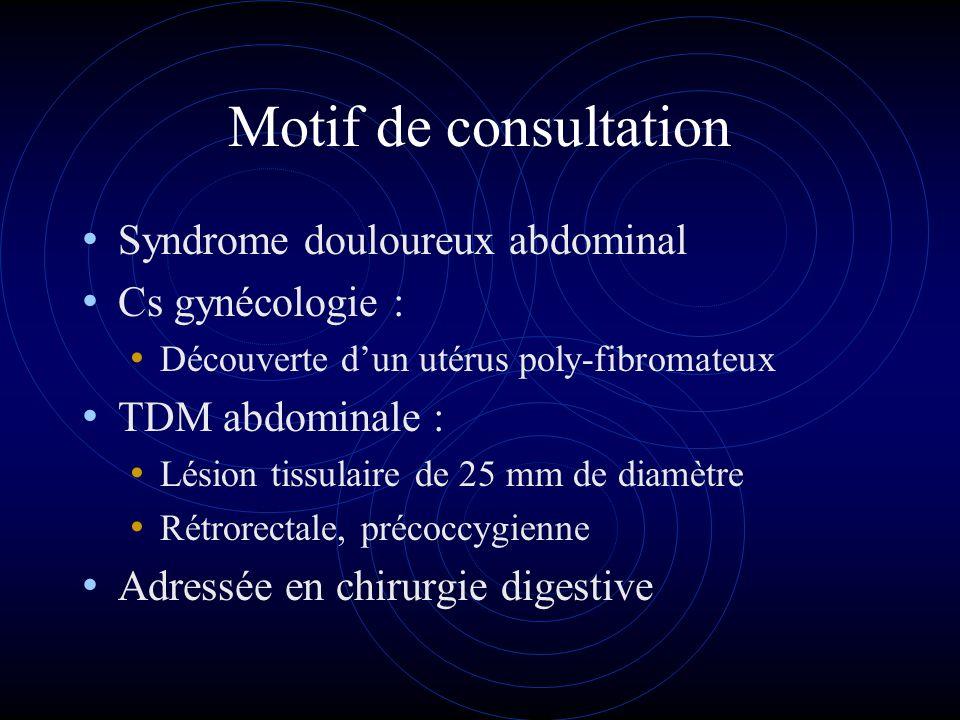 Motif de consultation Syndrome douloureux abdominal Cs gynécologie : Découverte dun utérus poly-fibromateux TDM abdominale : Lésion tissulaire de 25 m