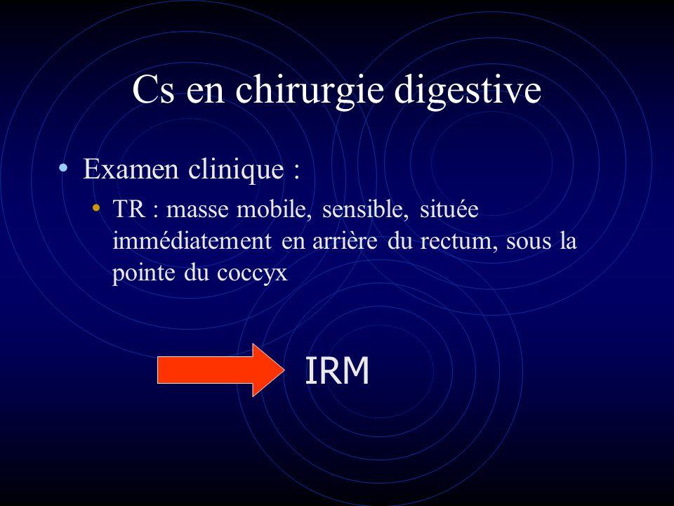 Cs en chirurgie digestive Examen clinique : TR : masse mobile, sensible, située immédiatement en arrière du rectum, sous la pointe du coccyx IRM