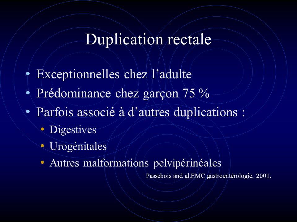 Duplication rectale Exceptionnelles chez ladulte Prédominance chez garçon 75 % Parfois associé à dautres duplications : Digestives Urogénitales Autres